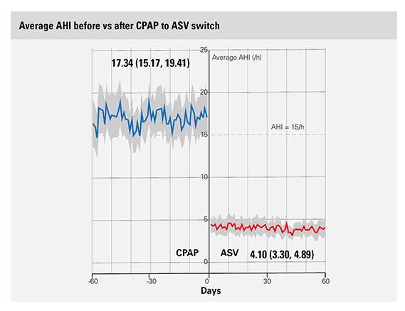 ビッグデータ研究が示すASVへの切り替えとAHI、レスメド