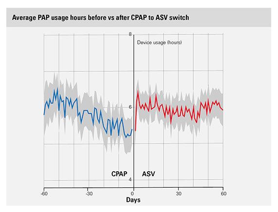 ビッグデータ研究が示すASVへの切り替えと使用時間、レスメド